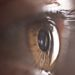 New sight-saving treatment for eye infection or trauma