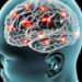 Brain waves can predict future sensitivity to pain