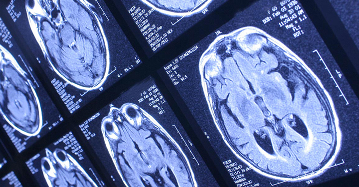 New scan set to help children with brain tumours