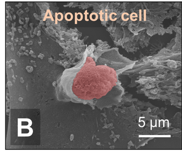 Apoptic cell under the microscope