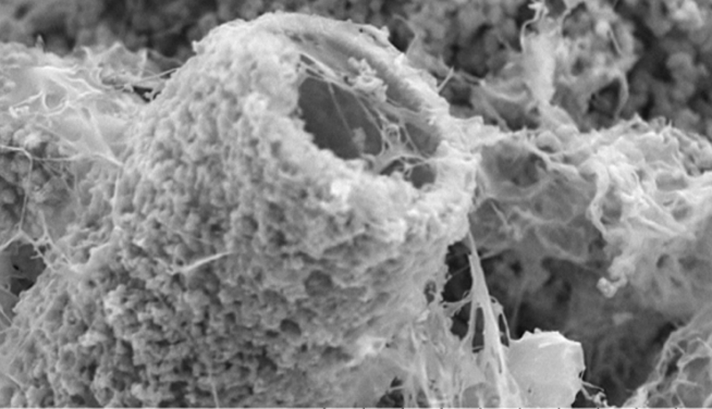 'Chemical gardens' can help grow bone substitute