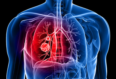 Study finds new group of lung cancer patients could benefit from immunotherapy treatment