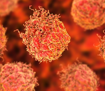 Sugars – key to an earlier, more accurate test for prostate cancer?