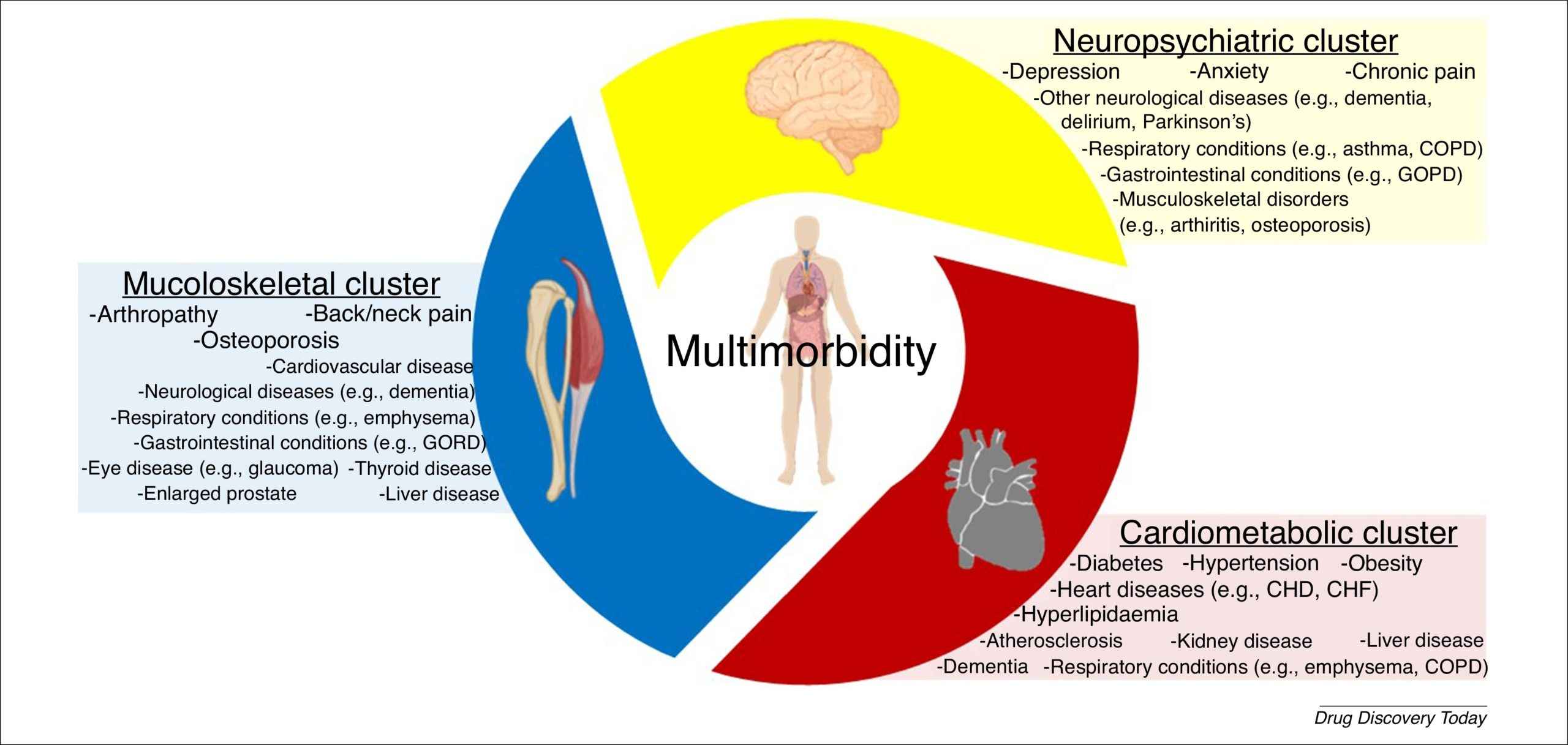 Diagram showing three categories of multimorbidity diseases: musculoskeletal conditions, cardiometabolic diseases, and neuropsychiatric conditions.