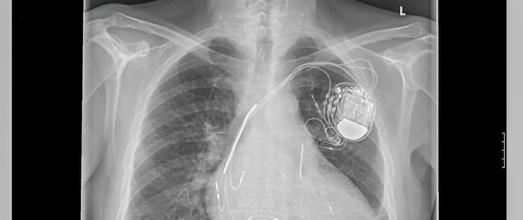 Everyday cyborgs: how should the law deal with implanted medical devices?
