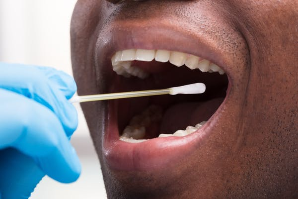 an african-caribbean man opens his mouth for a covid swab test