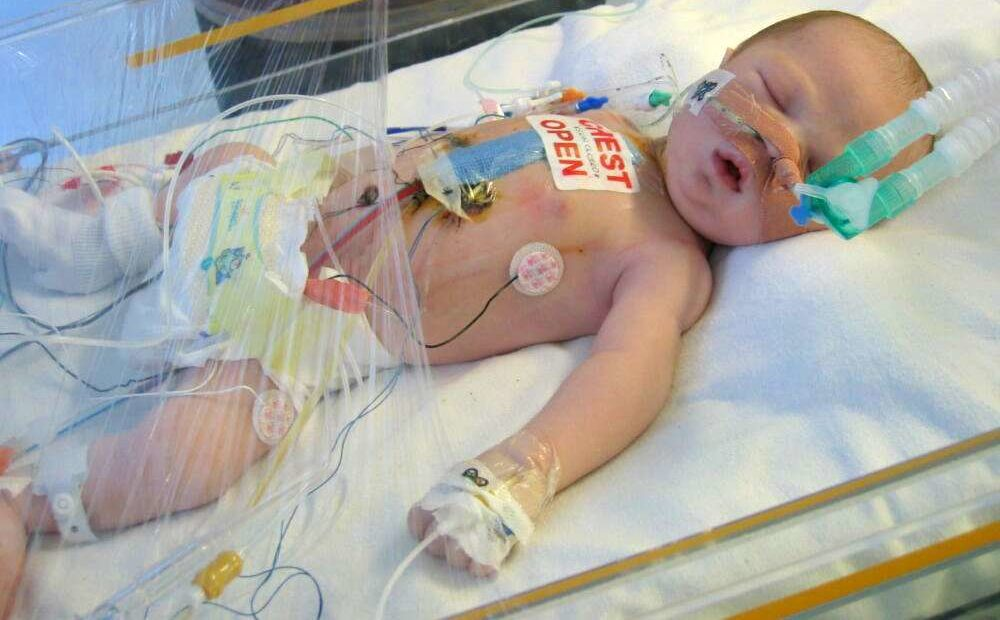 Birmingham expert leads national research study into congenital heart disease